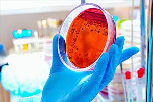 ANALISI MICROBIOLOGICHE ALIMENTI
